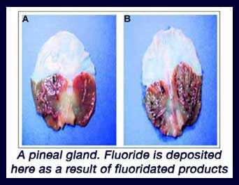 calcified pineal gland