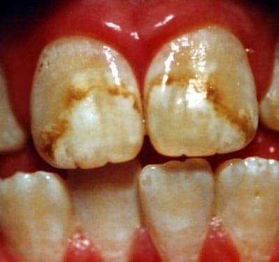 dental_fluorosis-1063
